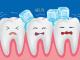Как бороться с повышеной чувствительностью зубов